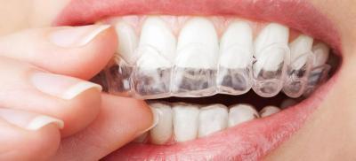 Orthodontie De L Adulte Orthodontie Invisible Saint Malo Dr